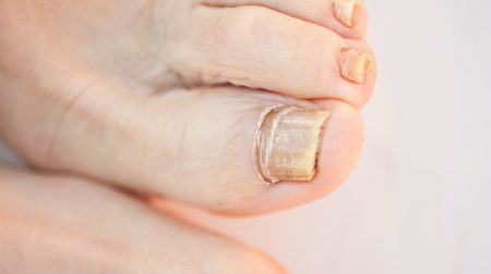 fingern gel verraten eisenmangel oder schuppenflechte lifeline. Black Bedroom Furniture Sets. Home Design Ideas
