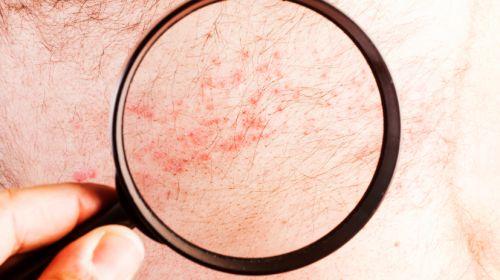 Hautausschlag: Welche Krankheit steckt dahinter?