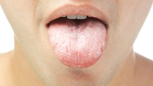 Zunge: Was Belag und Farbe bedeuten
